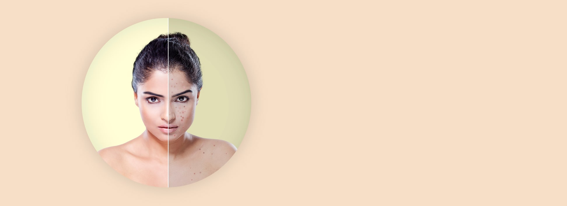 Get Spotless Skin by Dr Vikas Panthri's Radiant Aesthetics