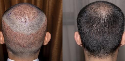 Dr Vikas Panthri's Radiant Aesthetics - Hair Transplant in